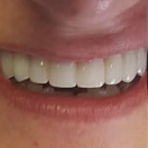 implant After